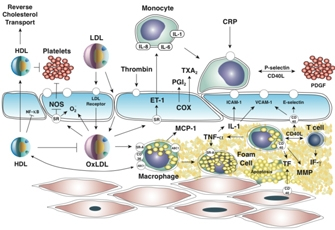 Pathogenesis of Atherosclerosis