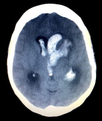 Intracerebral hemorrhage